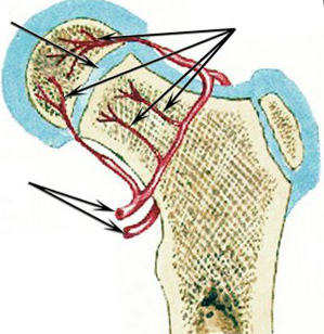 csípőízületi prognózis)