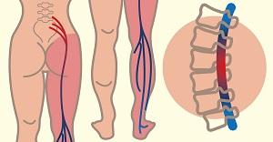 a vállízület gyulladásának kezelése összeroppant minden ízületet hogyan kell kezelni