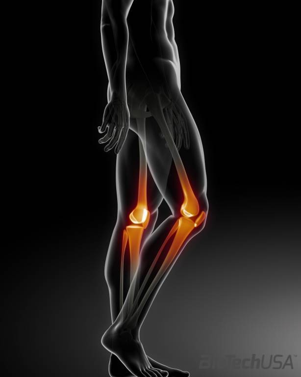 a könyökízület artrózisa 3 fokos kezelés