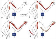 Spondylosis, spondylarthrosis