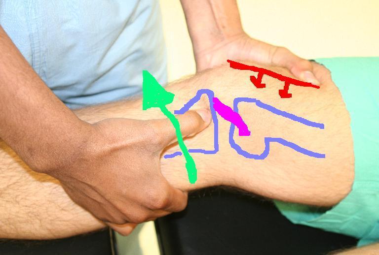 a térd sérüléseinek osztályozása)