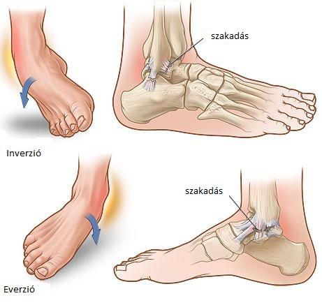 boka fájdalom sérülés