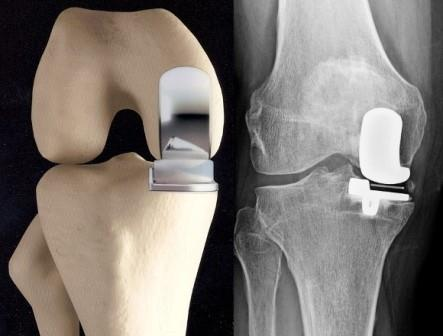 a térdízület károsodása és a láb diszlokációja)