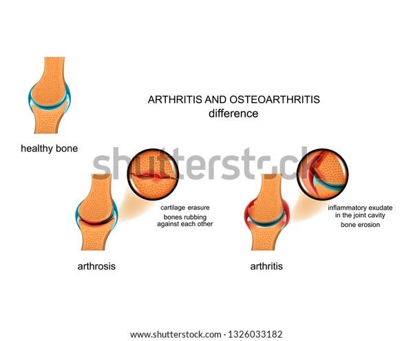 csípőkészítmények arthroso-arthritis