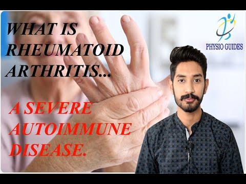 rheumatoid arthritis szakaszai ízületek osteochondrosis, ahonnan