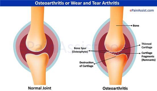 hajlító fájdalom a jobb könyökízületben nem szteroid ízületi kezelések árai