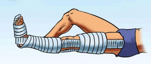a térdízület kezelésének kötőelemei és meniszciái)