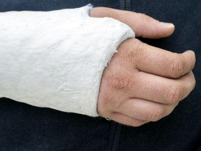 a kéz könyökízületi elmozdulása