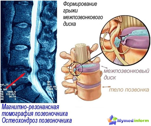 osteochondrosis nedir