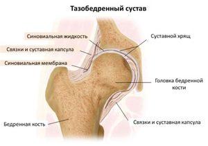 ízületi fájdalom csípőpótlás után