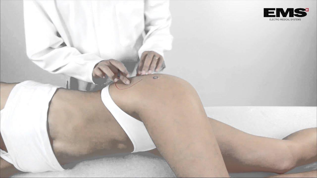 csípőgyulladás és fájdalom)