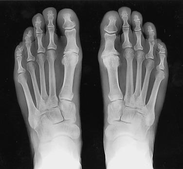 osteoarthritis 1st mtp joint icd 10