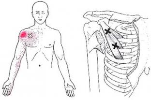 sterno-costalis ízületek fájdalma