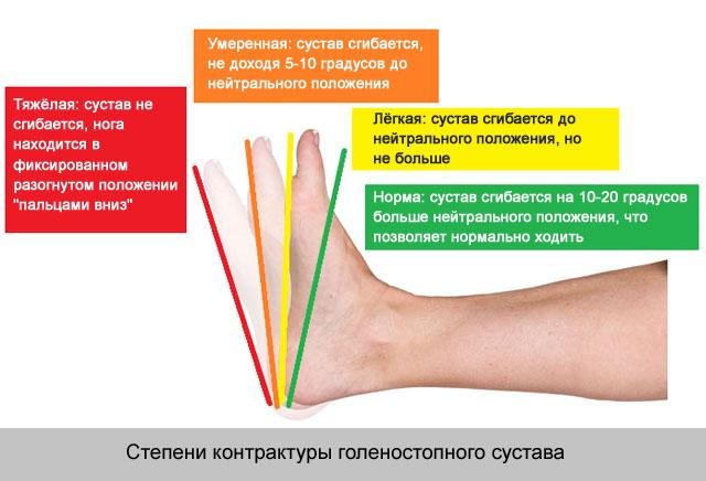 tapadások a vállízület kezelésében)