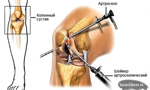 ízületi osteochondrosis kezelés)