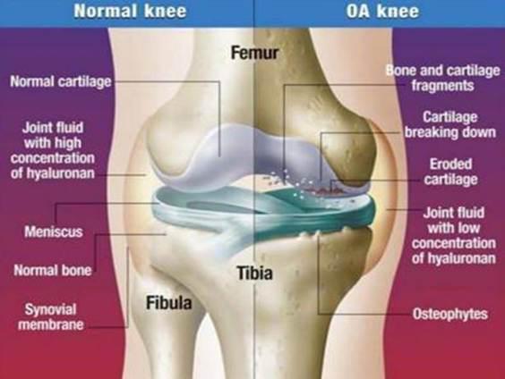 fájdalomcsillapítók térd artrózisához
