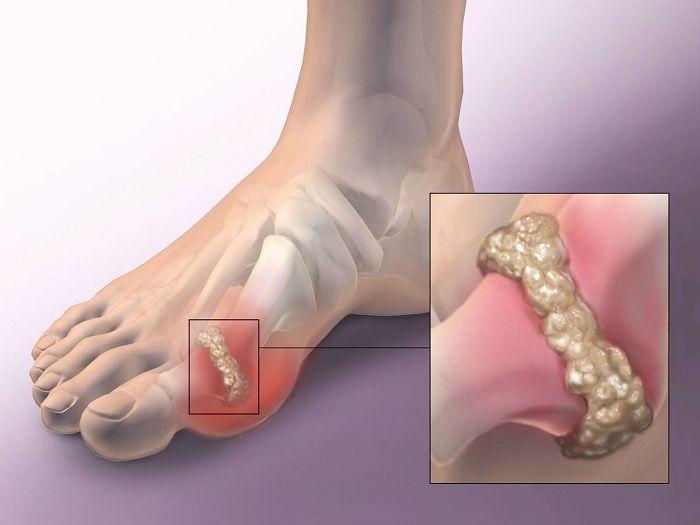 csontritkulás gyógyszerei a medenceízület fáj, ha jár