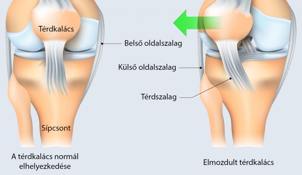fájdalom a térdízületben és az alatt)