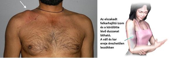 cseszlovak.hu - Nyakfájás és vállfájdalom: okok és megoldások