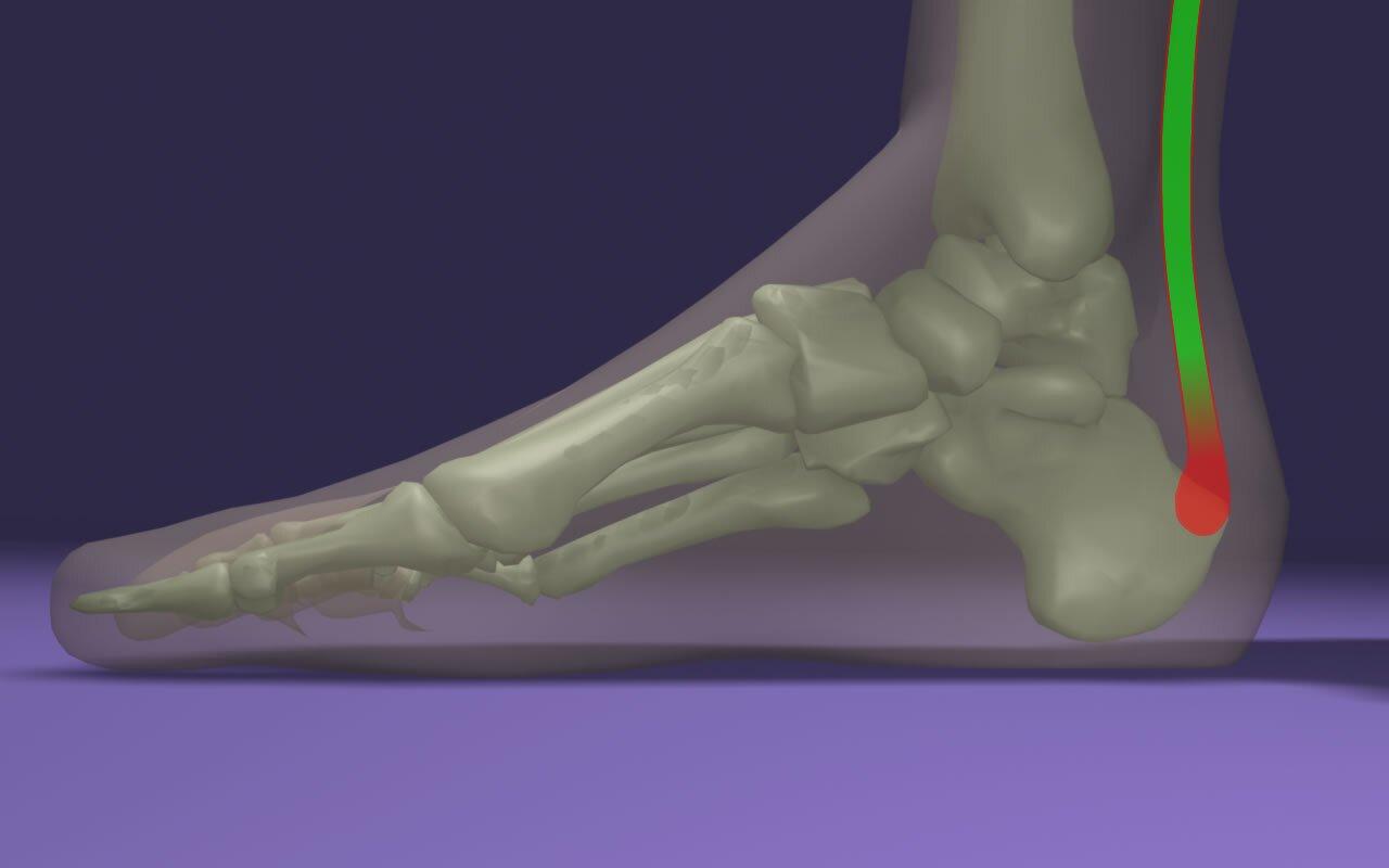 Achilles-ín krónikus fájdalma és achilles-in túlerőltetésének tünetei