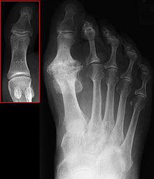 first mtp osteoarthritis icd 10