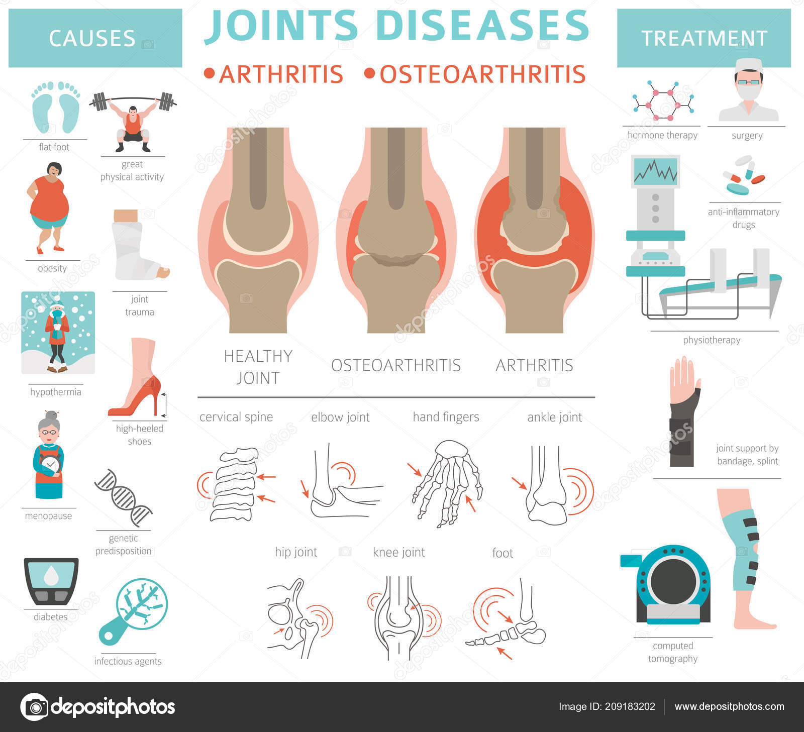 osteoarthritis nevertebral kezelés