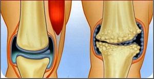 új módszerek a csípőízület artrózisának kezelésében