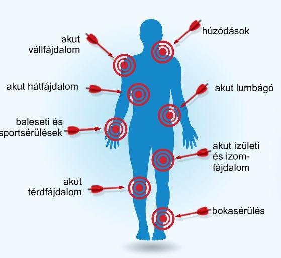csont- és ízületi fájdalomcsillapítás glükozamin 1500 kondroitin 400