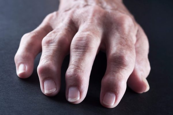 ízületi fájdalom autoimmun betegségekben