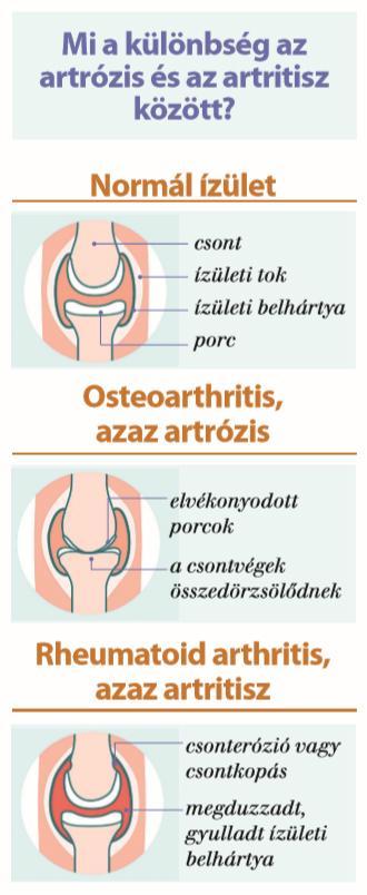 hogyan kell inni zselatint az artrózisos ízületek kezelésére