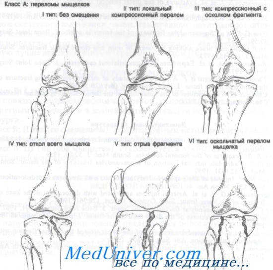 a térdízület károsodása és a láb diszlokációja mi a térd ligamentum károsodása
