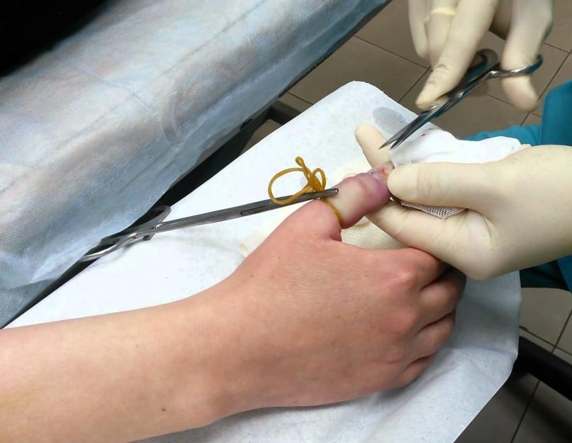 múmia artrózisos kezelése kenőcs a térdízület duzzanatáért