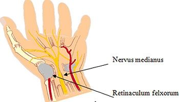 éles fájdalom a jobb kéz könyökízületében