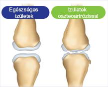 az ízületek fájnak 33-kor artrózis és ízületi gyulladás kezelési rendje