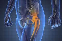 Hogyan lehet sikeresen kezelni az artrózist?