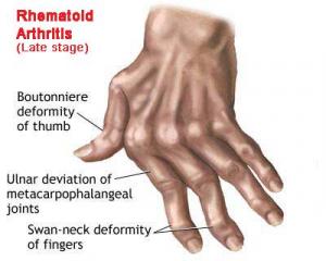 Rheumatoid Arthritis Hands. Pain Royalty Free Stock-fotók, Képek és Stock-fotózás. Image