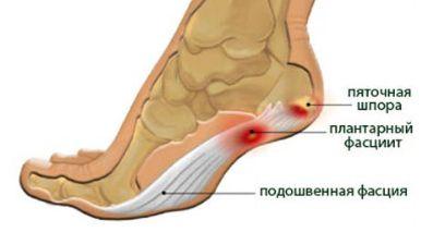a lábízület fájdalmának oka