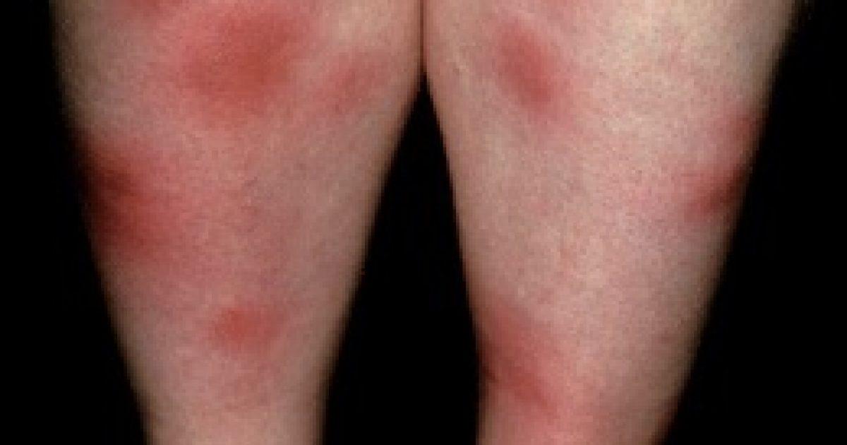 kötőszöveti betegség mértéke