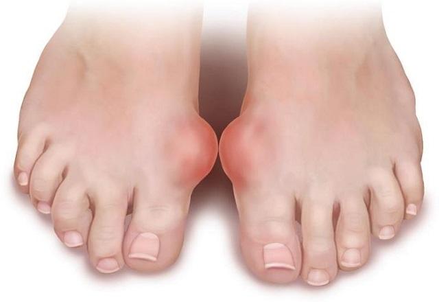 artrosz diprospan kezelése