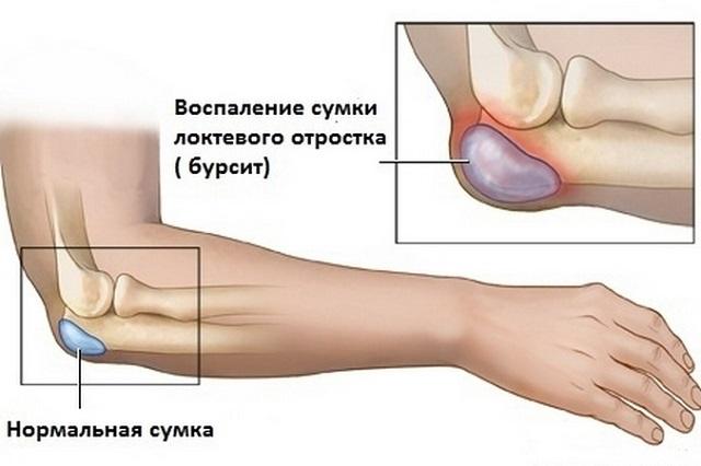 dimexid a könyökízület bursitisének kezelésére