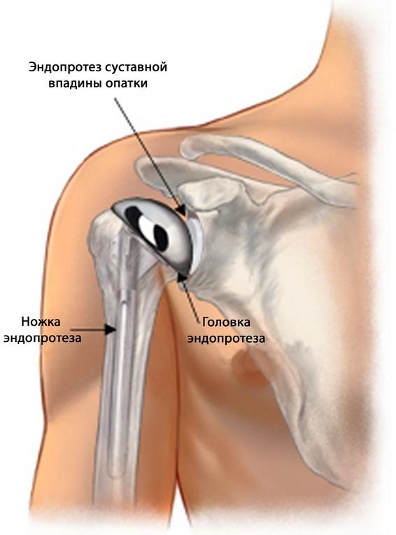a bal vállízület 1. fokozatának deformáló artrózisa