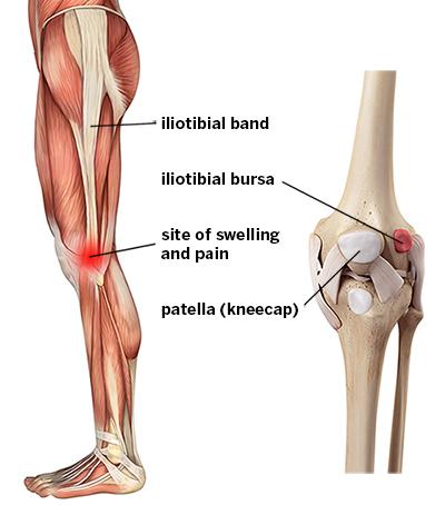 iliotibial tract pain