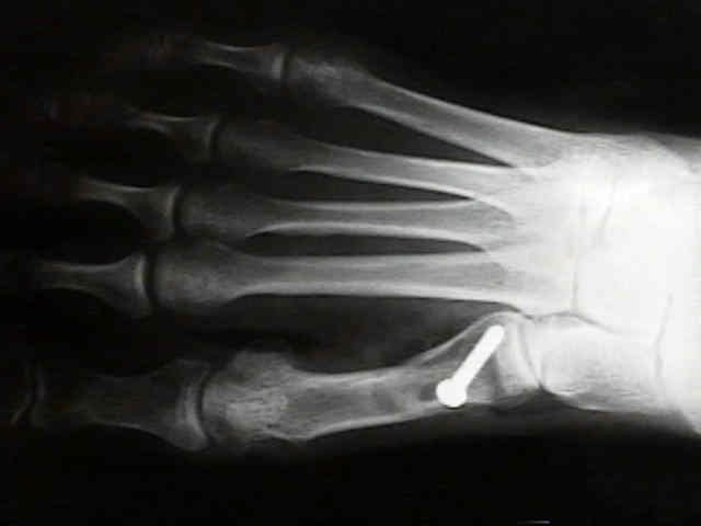 a térdkezelő fórum deformáló artrózisa)