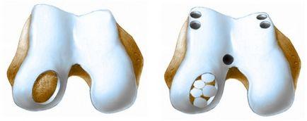 Dr. Diag - Discoid meniscus