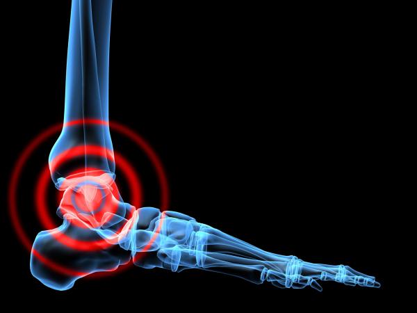boka és lábfájdalom