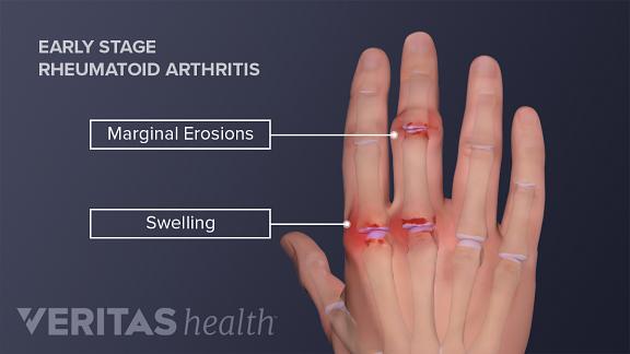 angol-magyar fordítás erre a szóra: arthritis