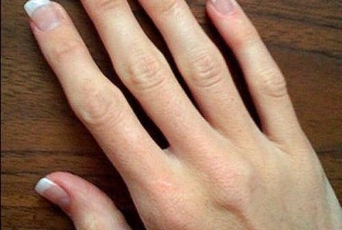 a kar ujjízületének ízületi gyulladása