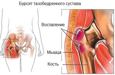 menopauza fájdalma a csípőízületekben)