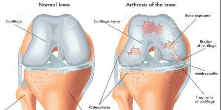 térdízület deformáló artrózisa