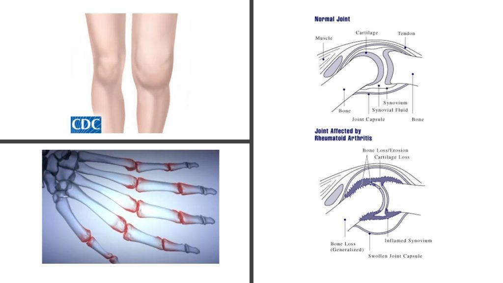minociklin ízületi fájdalom)